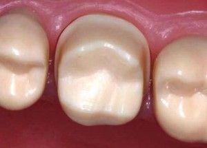 Облицювання зубів під металокераміку