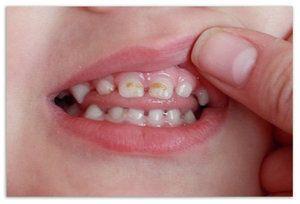 Особливості герметизації фісур у дітей