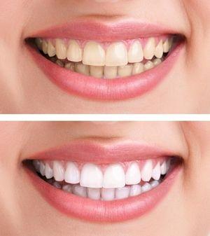 Метод відбілювання зубів