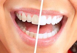 Рекомендації по відбілюванню зубів