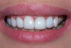 Способи відбілювання зубів будинку