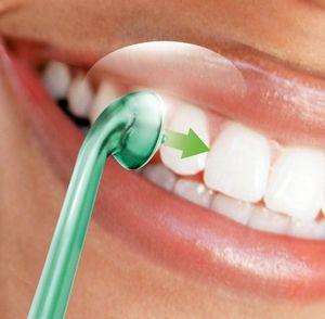 Що являє собою лазерне відбілювання зубів, відгуки про процедуру