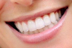 Відгуки про реставрацію зубів