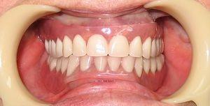 Відгуки про знімних протезах зубів