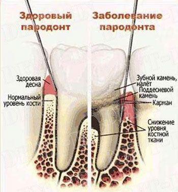 Пародонтит - симптоми і лікування захворювання