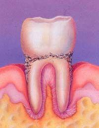 Періодонтит - лікування і профілактика