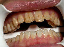 Пігментний наліт на зубах: причини і шляхи усунення