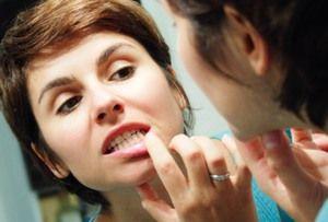 Чому можуть хворіти ясна і як їх лікувати