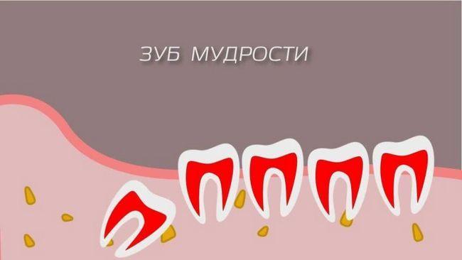 Чому виникає біль під час росту зуба мудрості