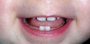 Порядок зростання перших зубів у немовлят