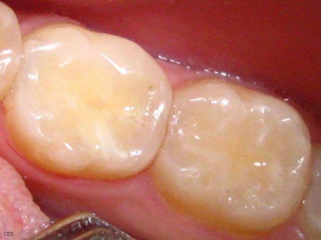 Після пломбування зуб болить при накусуванні
