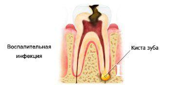 Наслідки кісти зуба: симптоми і лікування
