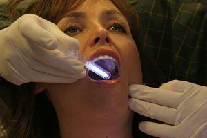 Червоний плоский лишай в порожнині рота