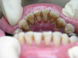 Причини утворення зубного каменю