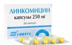 Застосування антибіотиків для лікування запалень ясен