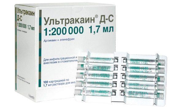 Застосування ультракаїну в стоматології