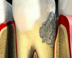 Процедура зняття зубного каменю ультразвуком