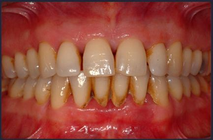 Профілактика зубного каменю і нальоту, досить зубної пасти?