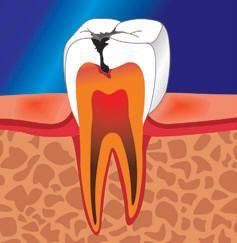 Пульпіт зуба: симптоми і ознаки
