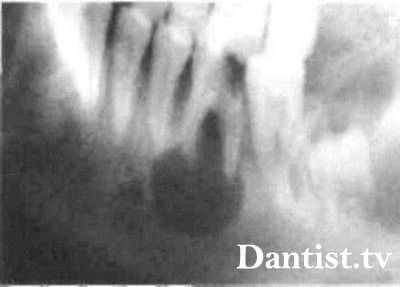 Радікулярная і ретенційна кіста зуба: відмінності, симптоми, наслідки та лікування