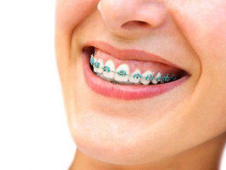 Різновиди сучасних ортодонтичних апаратів