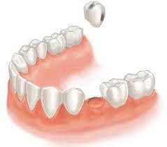 Рекомендації після видалення зуба