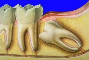 Ретінірованний зуб мудрості