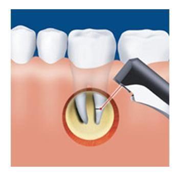 Резекція верхівки кореня зуба. Остання надія