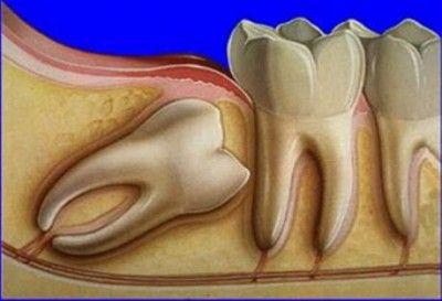 Ріжеться зуб мудрості, що робити? Загальні рекомендації