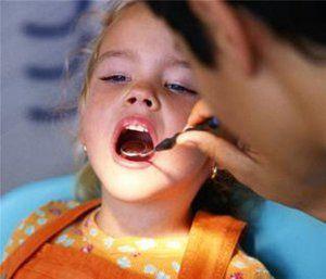 Сріблення зубів у дітей: особливості процедури та відгуки