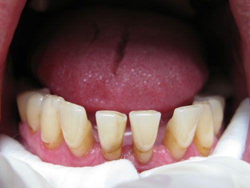 Шинування зубів, види і способи