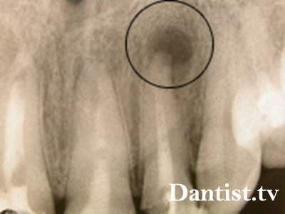 Симптоми кісти зуба