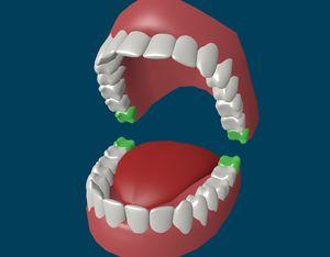 Скільки зубів мудрості у людини