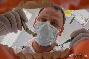 Зняття зубних відкладень