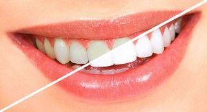 Засіб відбілювання зубів в аптеці для домашнього застосування
