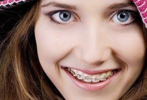 Вартість красивої посмішки
