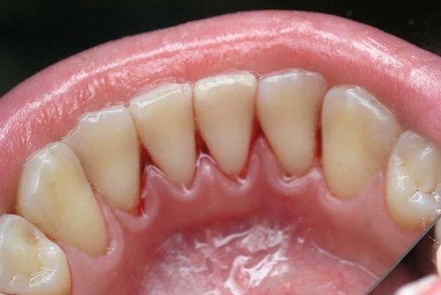 Вартість видалення зубного каменю і ціни на супутні процедури