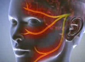 Трійчастий нерв: лікування у лікаря і в домашніх умовах