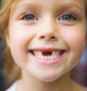 У дитини випав зуб. Що з ним робити?