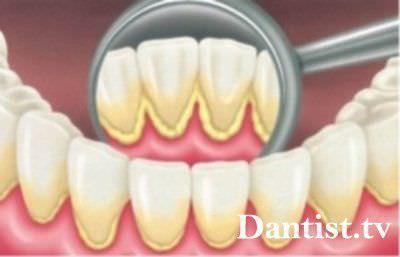 Видалення нальоту з зубів: ціна і фото