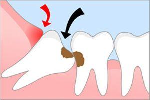 Видалення восьмого зуба