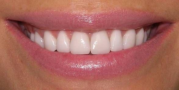 як позбутися зубного каменю
