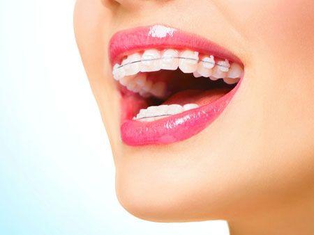 Чи ставлять брекети на зуби без нервів