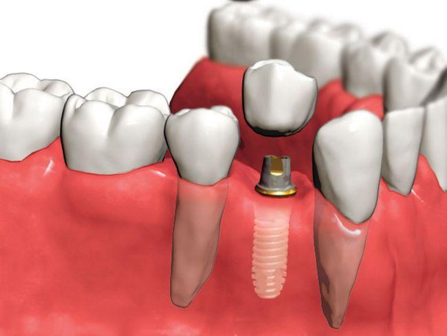 Знімні зубні протези - види конструкцій, установка, ціна