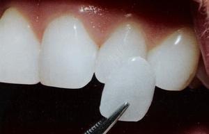 Вініри на зуби: фото до і після
