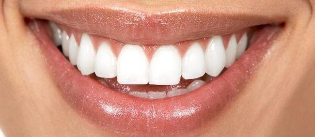 Вініри на зуби: фотографії до і після