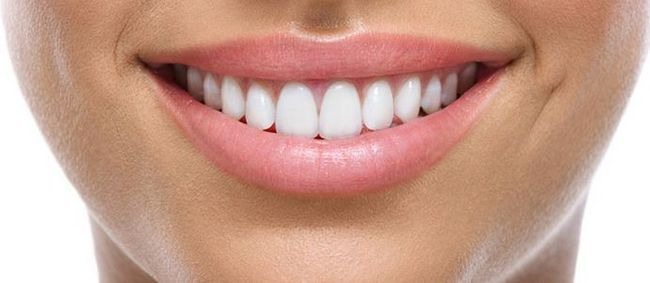 Вініри на зуби: відгуки, достоїнства і недоліки