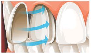 Вініри на зуби - переваги і недоліки, види, відгуки