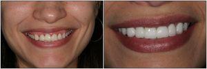 Вініри в стоматології: що це таке і як їх використовують