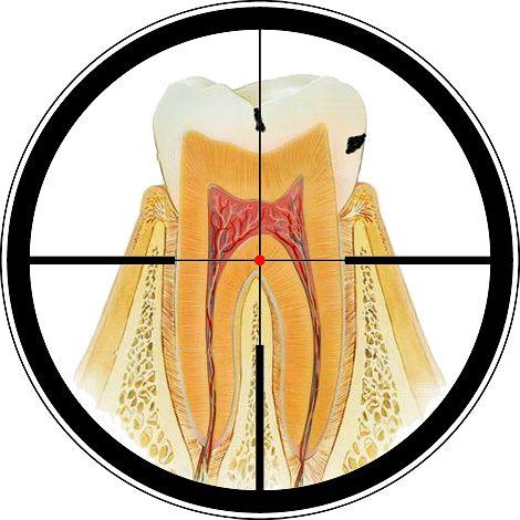 Чи можливо позбутися від карієсу на зубах в домашніх умовах?